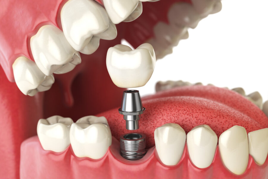 A dental implant surgically inserted into the gums as a permanent tooth replacement solution