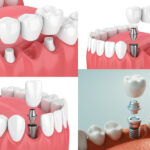 4 image collage showing a traditional dental bridge, an implant-supported bridge, and 2 different dental implants